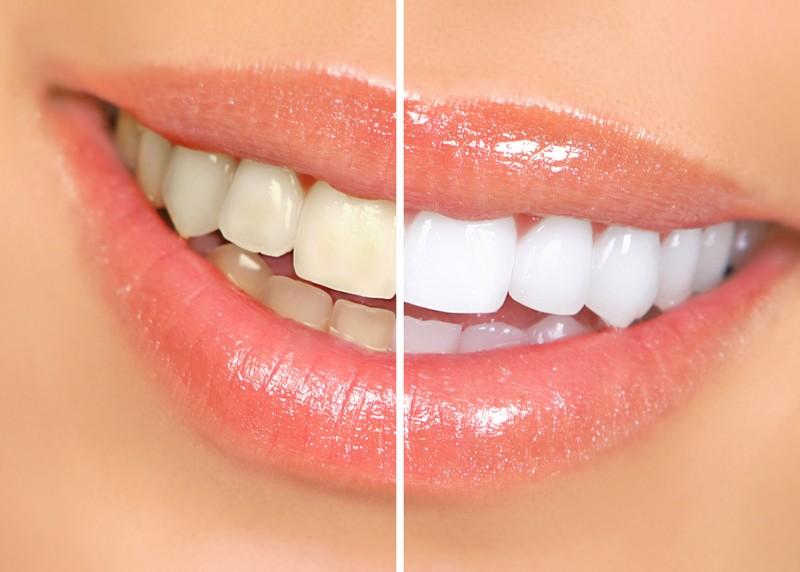 Teeth Whitening  Claremont, NC